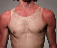 sunburns